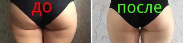 Кожа на ягодицах девушки до и после применения антицеллюлитного медового массажа