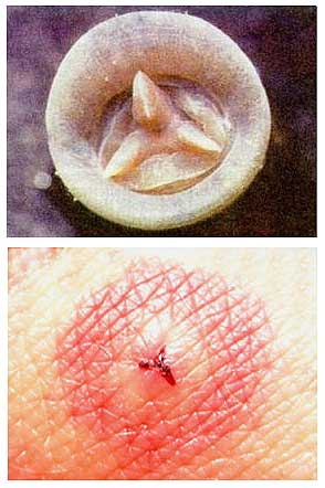 Челюсти пиявки и след от укуса