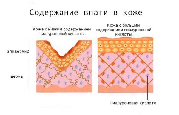Схема действия гиалуроновой кислоты