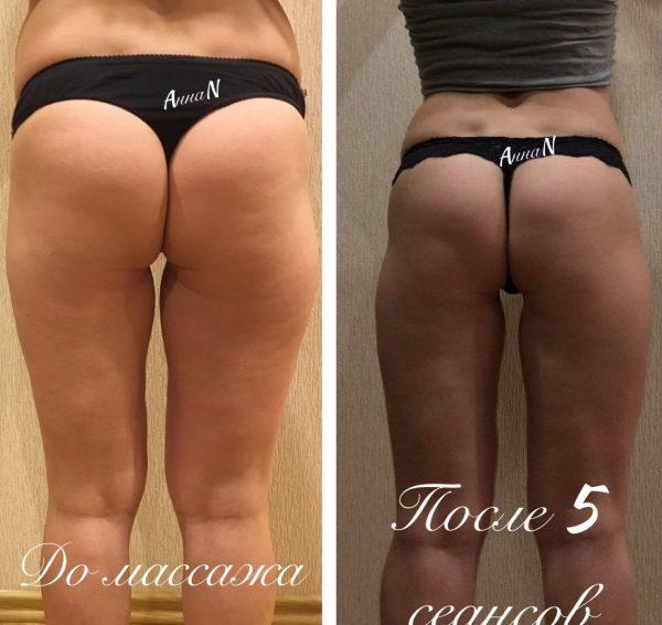 Бёдра и ягодицы девушки до и после 5 сеансов антицеллюлитного массажа