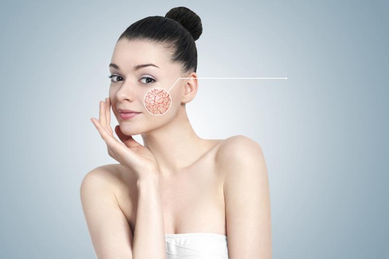 Девушка с признаками купероза на лице