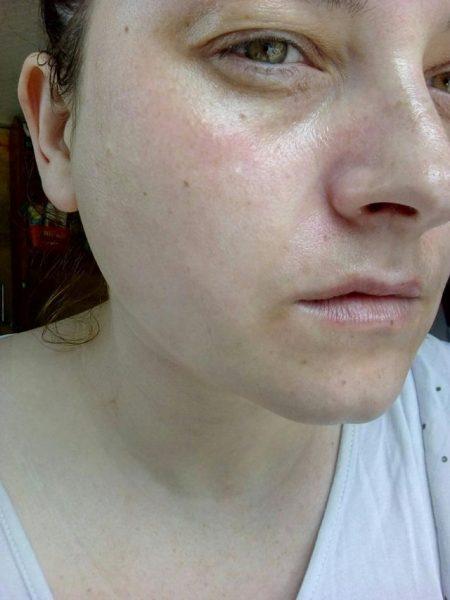 Нанесение геля на лицо