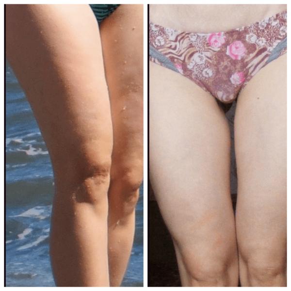 Ноги девушки до и после использования вакуумного массажа против целлюлита