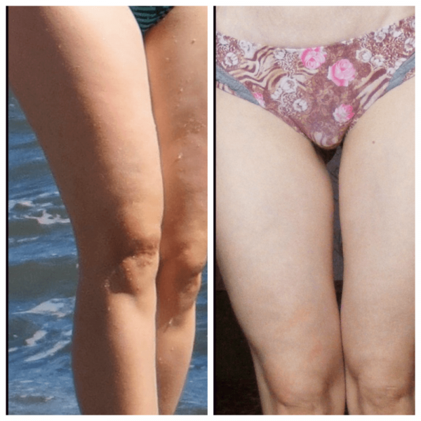 Ноги девушки до и после применения вакуумного антицеллюлитного массажа