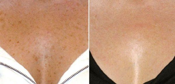Пигментация до и после лечения