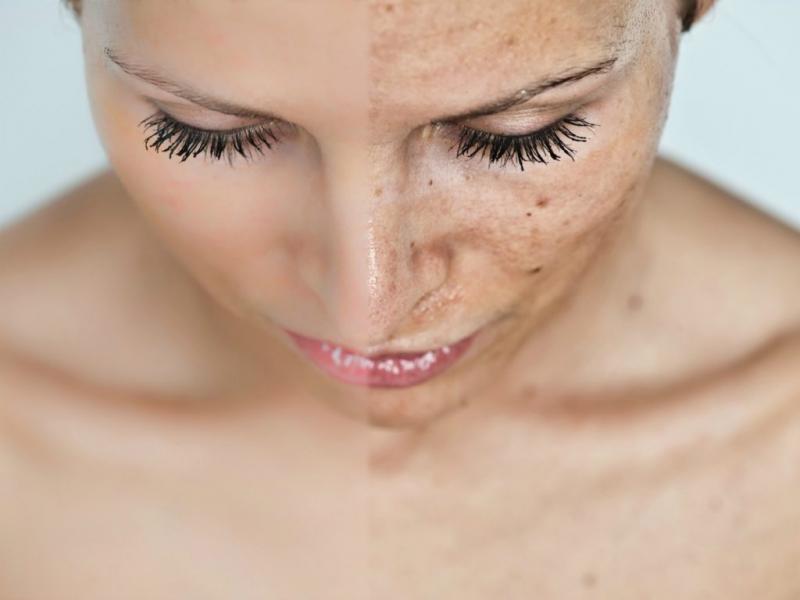 Пигментация на коже