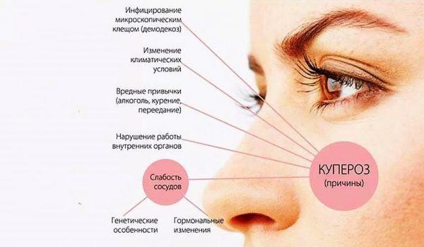 Причины купероза