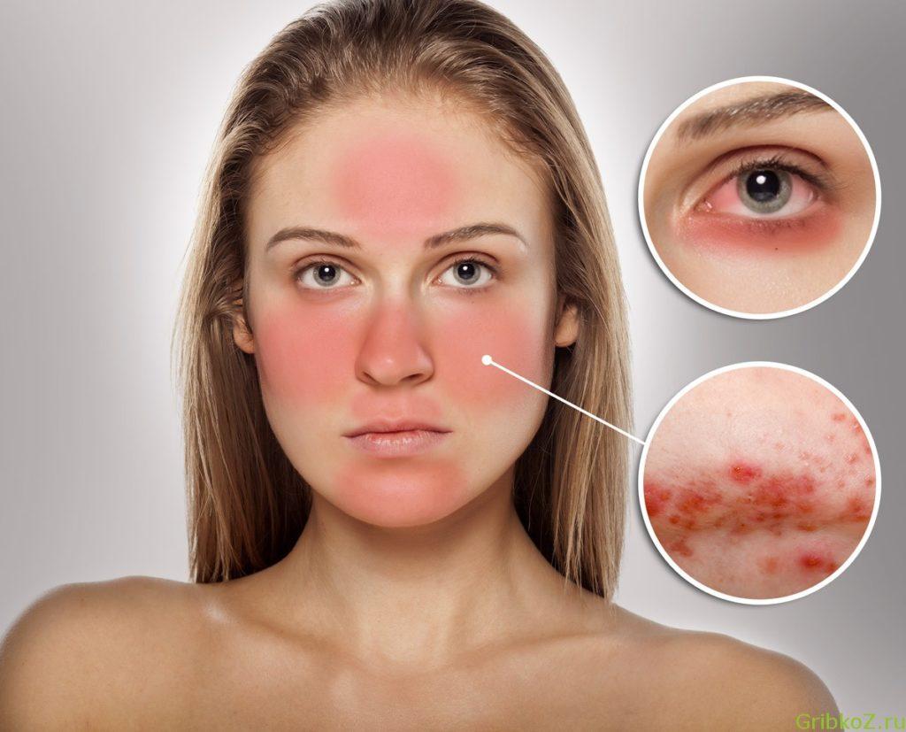 Как убрать сосудистые звездочки на лице: самые эффективные методы лечения и отзывы о них