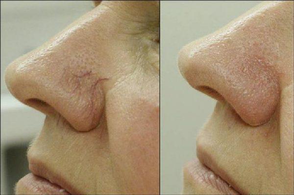 Состояние кожи до и после лечения