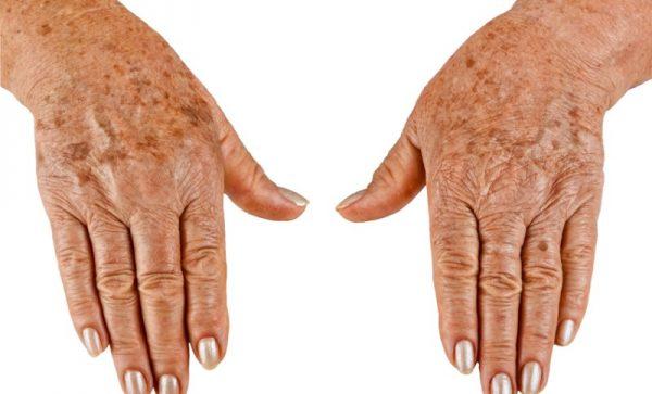 Старческие руки