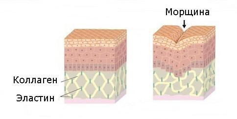 Схематичное изображение морщины