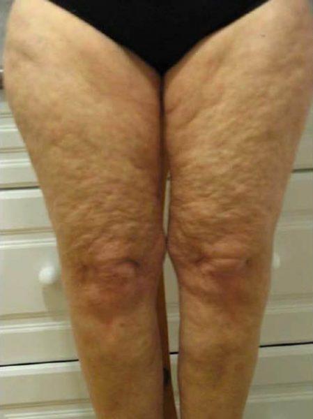 Целлюлит четвёртой стадии на ногах женщины