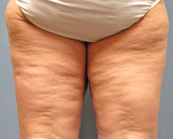 Целлюлит третьей стадии на ногах женщины