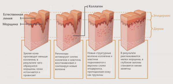 Действие ретиноидов на кожу