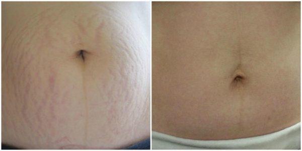 Фото живота с растяжками до и после лечения методом 3D