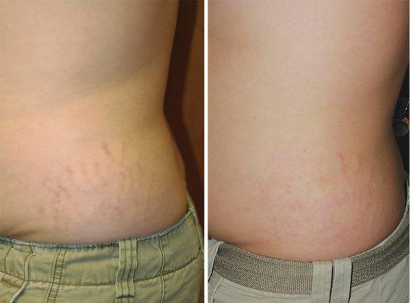 фото до и после лечения растяжек на теле аппаратным методом
