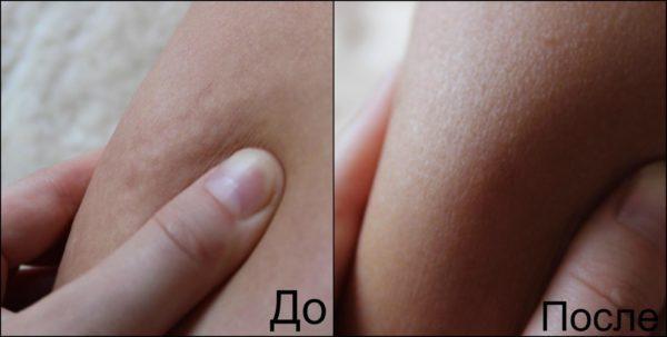 Кожа девушки до и после выполнения вакуумного антицеллюлитного массажа