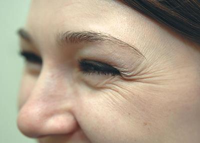 Морщины в уголках глаз