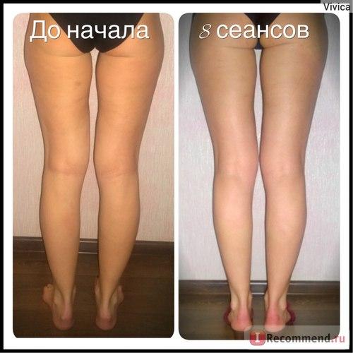 Ноги ДО и ПОСЛЕ массажа