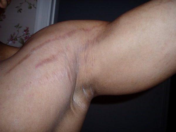Растяжки на плече у мужчины