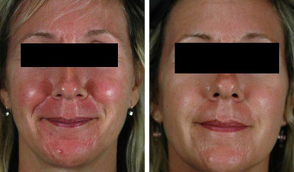 Результаты лечения косметикой Стоп Купероз