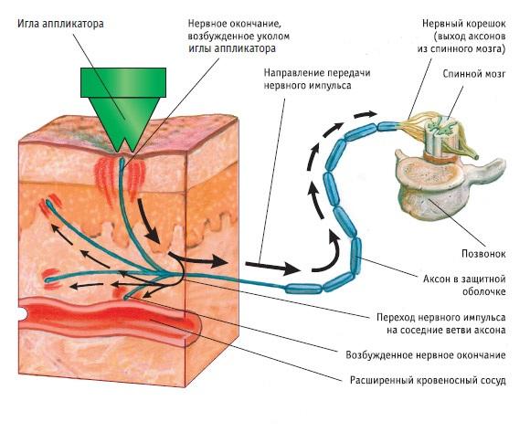 Схема воздействия Аппликатора Кузнецова на кожу