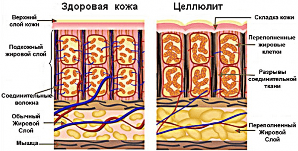 Строение здоровой кожи и при целлюлите
