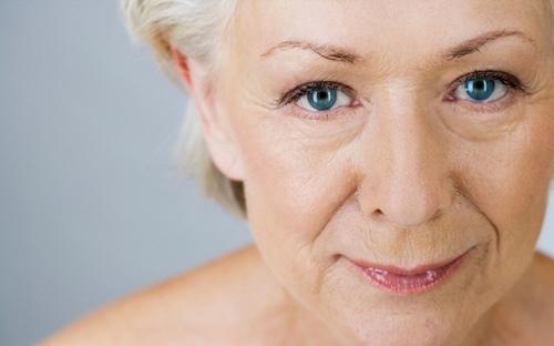 Возрастные морщины у женщин