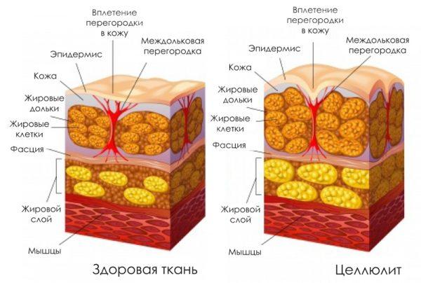 Жировые клетки здоровой кожи и дермы, поражённой целлюлитом