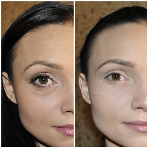 Инъекции гиалуроновой кислоты против мешков под глазами