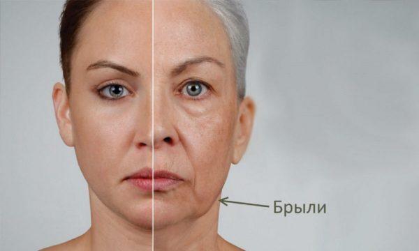 Лицо женщины с выраженными брылями