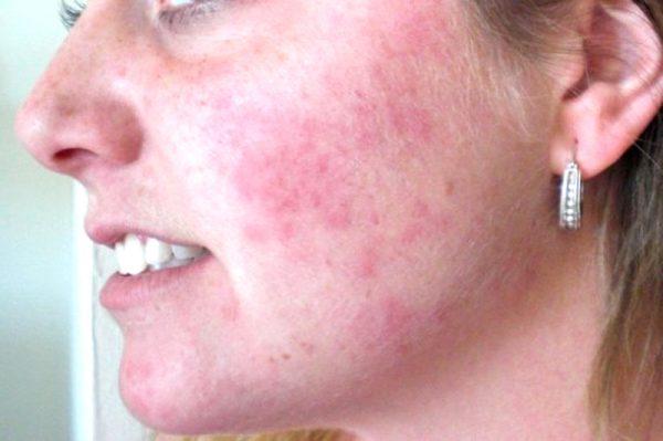 Аллергия на растительные масла на лице девушки