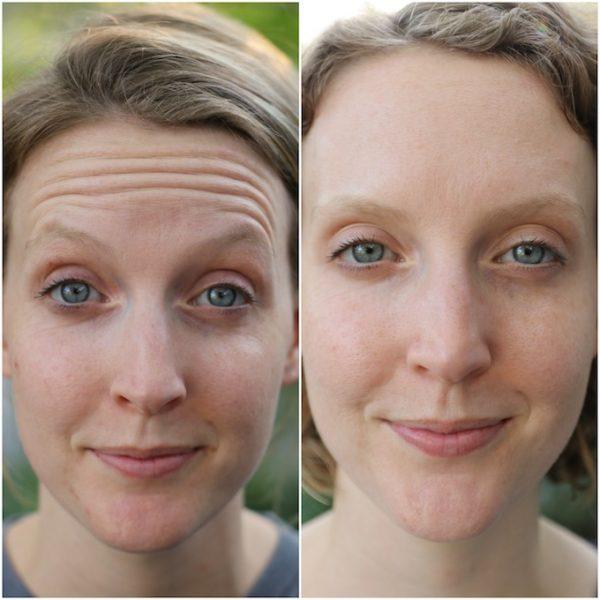 Ботокс до и после
