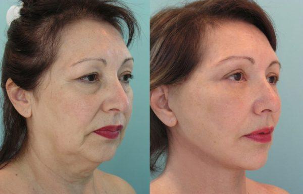 фото женского лица до и после упражнений