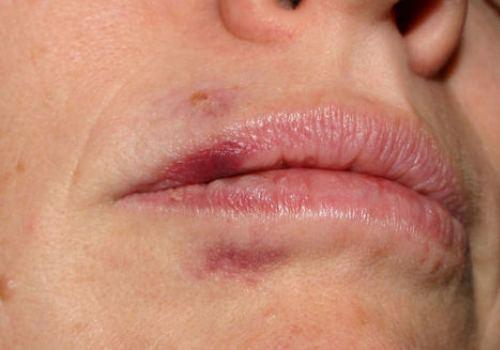 Гематомы после контутрной пластики губ