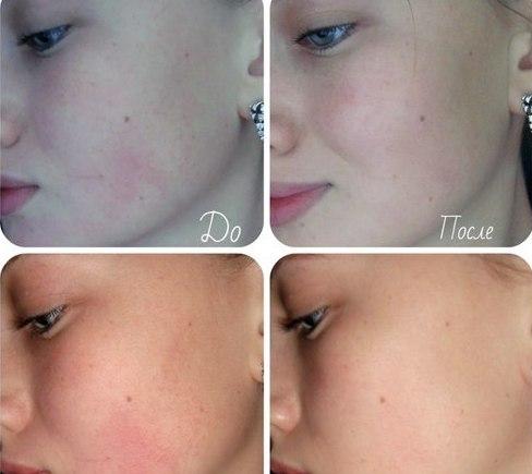 Кожа девушки до и после использования домашней маски с мёдом