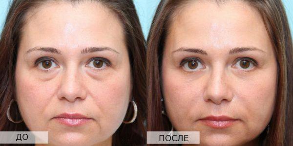 Микротоки — результат борьбы с мешками под глазами