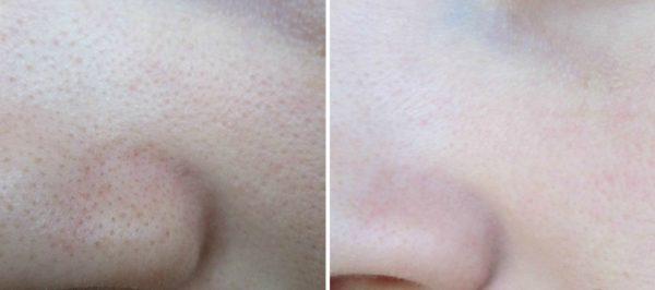 Результат после использования маски с углём и желатином