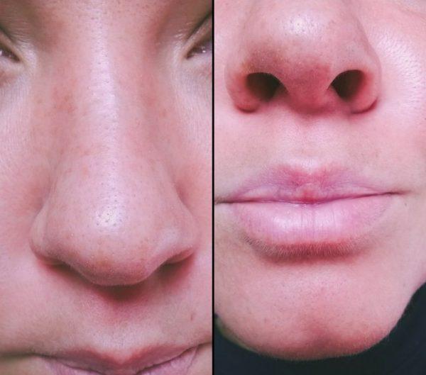 Результат после применения маски