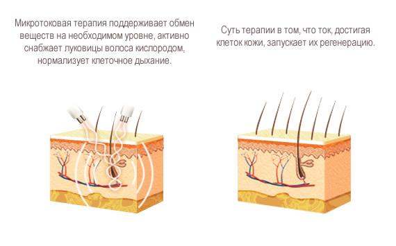 Схема воздействия микротоков
