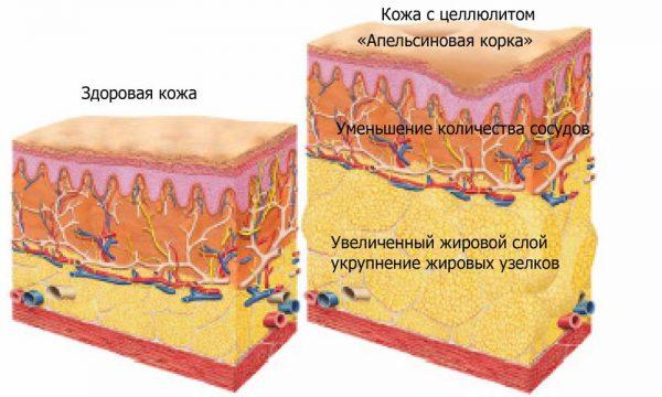 Схематическое изображение целлюлита