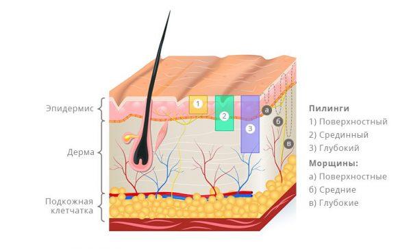 Типы пилингов в зависимости от степени воздействия на слои кожи