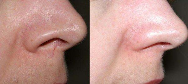 Устранение купероза и осветление тона после такой процедуры