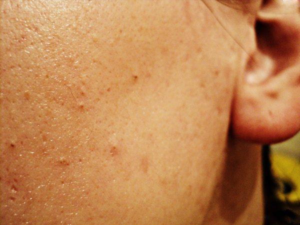 Внешний вид кожи на 4 день использования масла