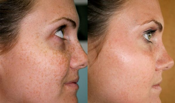 Результаты осветления веснушек (лицо до и после)