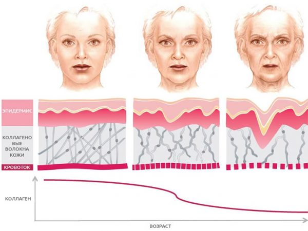 Проявление внешних признаков старения по мере снижения выработки коллагена