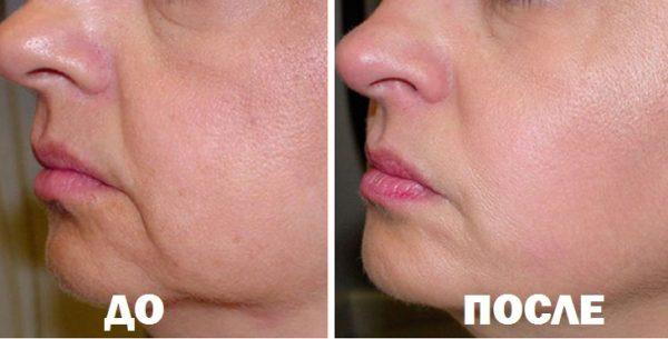 Результат применения масел для подтяжки лица