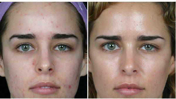 Фото до и после курса дарсонвализации