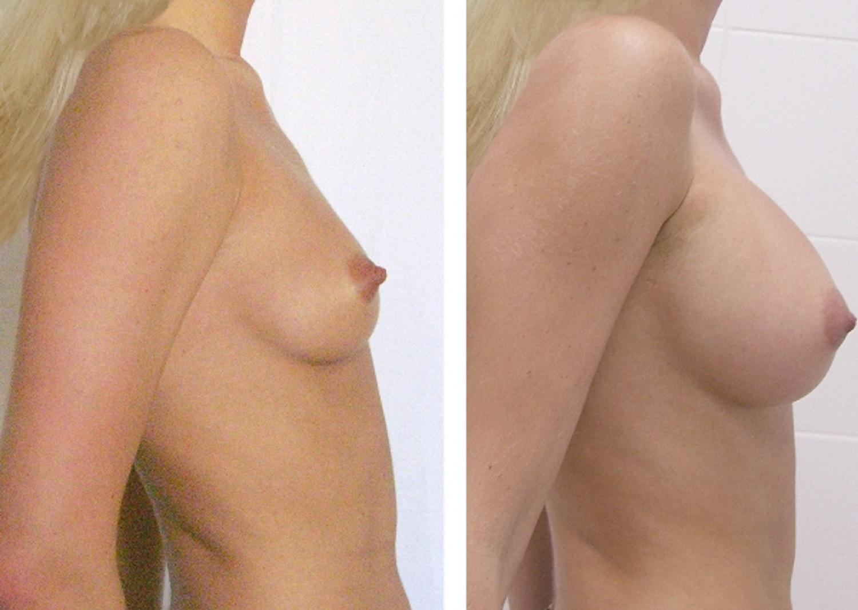 Обвисшая силиконовая грудь фото видео растягивание
