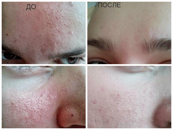 Действие дегтярного мыла на проблемную кожу (до и после)